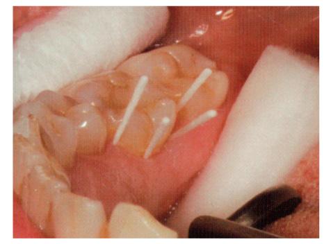歯周病菌のDNA検査