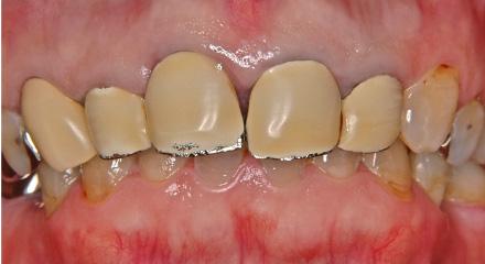 保険適応の被せ物(前歯)