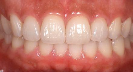 オールセラミック(前歯)